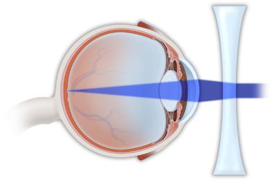 myopia corrective lens